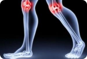 Reumatyzm- symptomy oraz leczenie